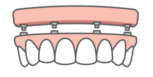 a full row of teeth being placed onto an upper arch