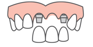 multiple teeth being placed into an upper arch of teeth