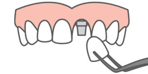 Illustration of a tooth being placed into an upper arch of teeth